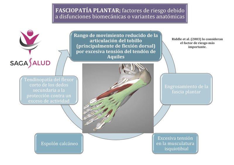 Fasciopatía plantar, o mayormente conocida como fascitis plantar