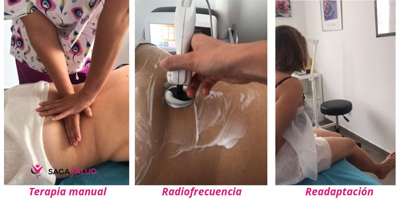tratamiento dolor espalda