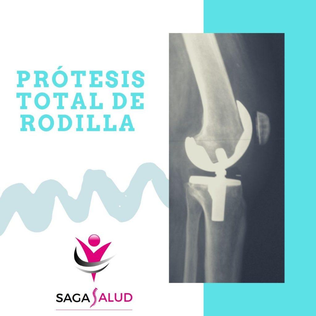 Intervención de prótesis de rodilla ¿Cuando empezar con la rehabilitación?
