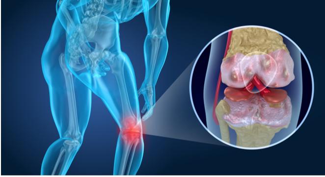 Caso clínico; rehabilitación tras intervención quirúrgica en menisco